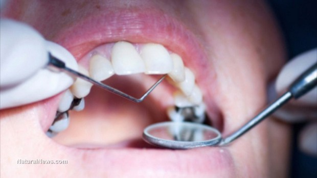 dentist-dental-cleaning-cavities-fluoride-copiar
