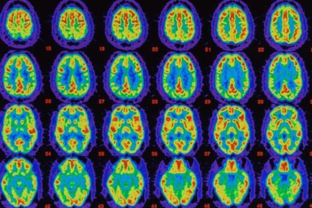Brain-Scan-1