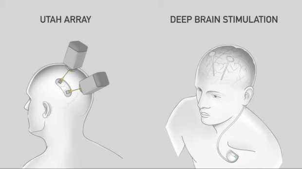 elon-musk-presents-neuralink-a-revolutionary-brain-implant